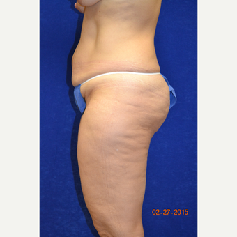 45-54 year old woman treated with Tummy Tuck before 3725238