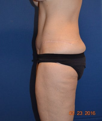 45-54 year old woman treated with Tummy Tuck after 3725238