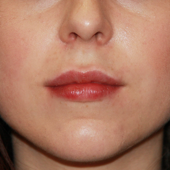 25-34 year old woman treated with Juvederm after 3696249