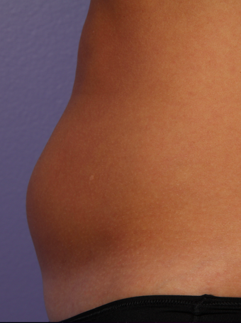 CoolSculpting by Zeltiq to abdomen before 375503