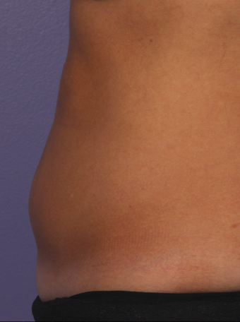 CoolSculpting by Zeltiq to abdomen