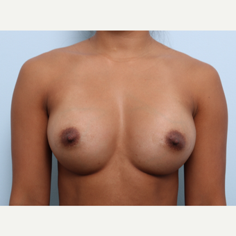 Breast Augmentation after 3459915