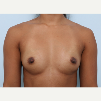 Breast Augmentation before 3459915