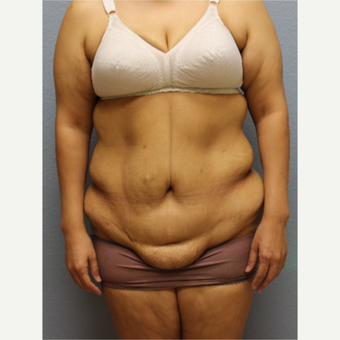 45-54 year old woman treated with Tummy Tuck before 3424186