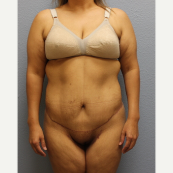 45-54 year old woman treated with Tummy Tuck after 3424186