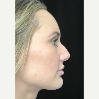 Scarless Closed Rhinoplasty before 3586256
