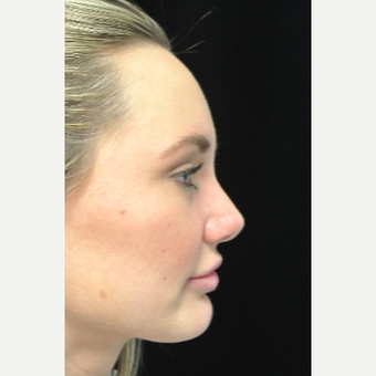 Scarless Closed Rhinoplasty after 3586256