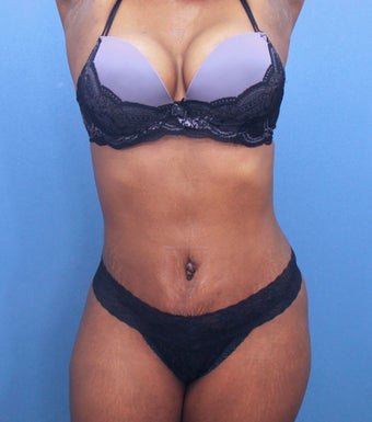 Tummy Tuck after 2526093