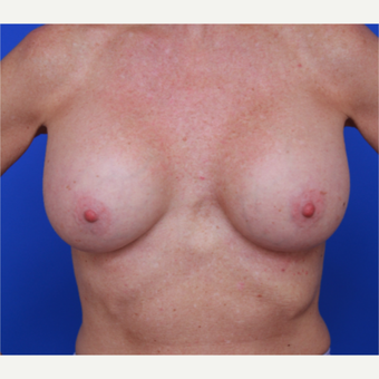51- year old woman treated with Breast Implants after 3787618
