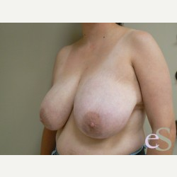 Breast Reduction before 3373534