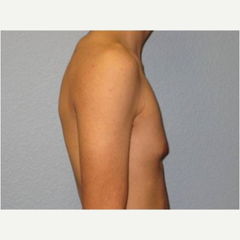 18-24 year old man treated with Male Breast Reduction before 3736967