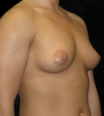 28 year old woman treated with Breast Augmentation 3093720