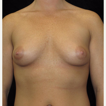 28 year old woman treated with Breast Augmentation before 3093720