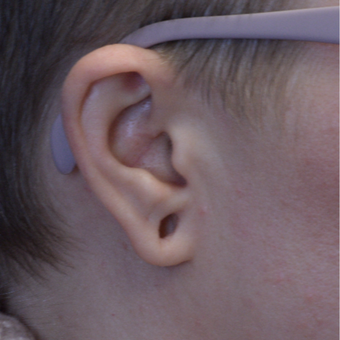 12-34 year old woman treated with an Ear Gauge Repair before 3253367