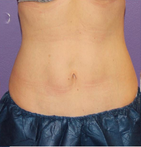 35-44 year old woman treated with CoolSculpting after 3240439