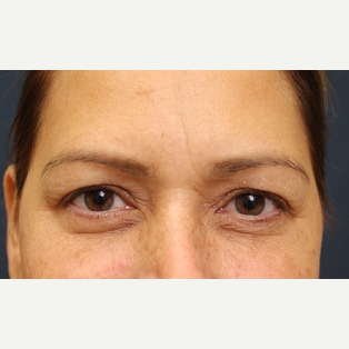 45-54 year old woman treated with Eyelid Surgery before 3344210
