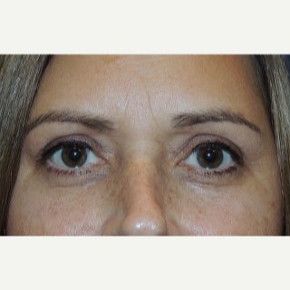 45-54 year old woman treated with Eyelid Surgery after 3344210