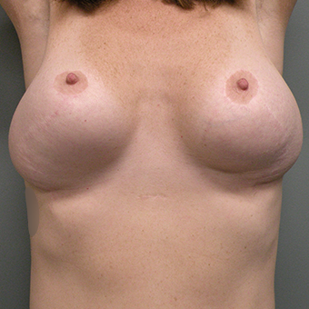 35-44 year old woman treated with Breast Implant Revision before 2853007