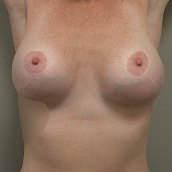 35-44 year old woman treated with Breast Implant Revision after 2853007
