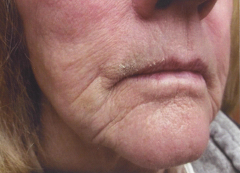 Marionette lines around the mouth after fractional CO2 laser resurfacing before 1489188