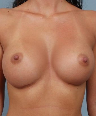 Breast Augmentation- Asymmetric Breasts  after 1268313