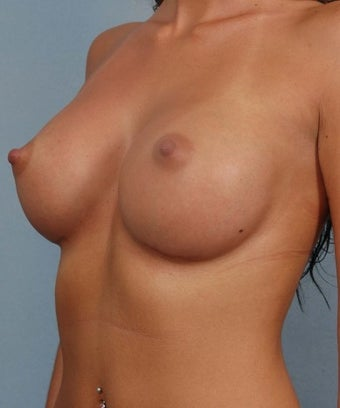 Breast Augmentation- Asymmetric Breasts  1268313