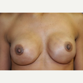 40 year old woman with a Breast Reconstruction after 3065315