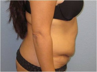 35-44 year old woman treated with Tummy Tuck 3726306