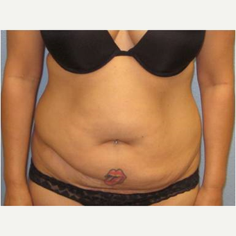35-44 year old woman treated with Tummy Tuck before 3726306