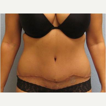 35-44 year old woman treated with Tummy Tuck after 3726306