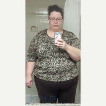 Gastric sleeve before and after results before 2139723