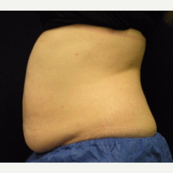 35-44 year old woman treated with CoolSculpting before 3679848
