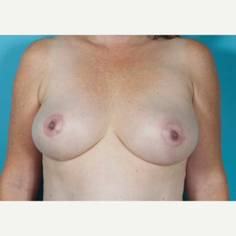 46 year old woman treated with Breast Implant Removal and Mastopexy 5 months post-op after 2227605
