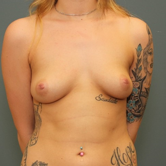 18-24 year old woman requesting Breast Augmentation before 3346410