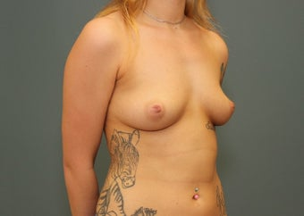 18-24 year old woman requesting Breast Augmentation 3346410