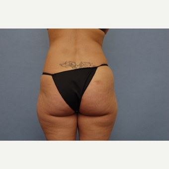 35-44 year old woman treated with Liposculpture/Brazilian Butt Lift before 3108472
