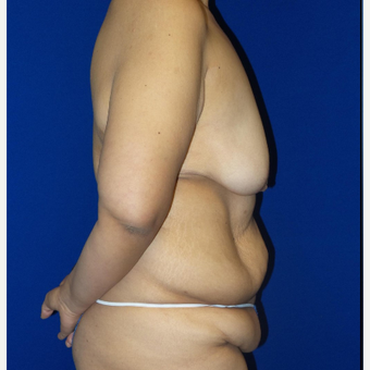18-24 year old woman treated with Body Lift before 3253876
