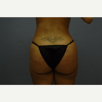 35-44 year old woman treated with Liposculpture/Brazilian Butt Lift after 3108472