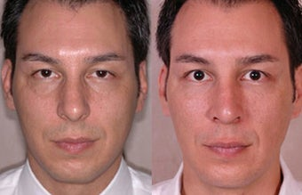 Man for Facial Fat Transfer before 1514491