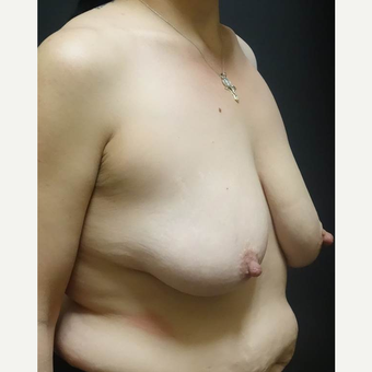 35-44 year old woman treated with Breast Lift with Implants before 3014357