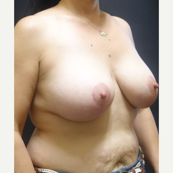35-44 year old woman treated with Breast Lift with Implants after 3014357