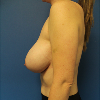25-34 year old woman treated with Breast Reduction before 3364986