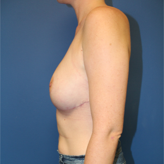 25-34 year old woman treated with Breast Reduction after 3364986