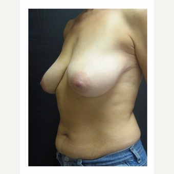 45-54 year old woman treated with Breast Lift before 3175685