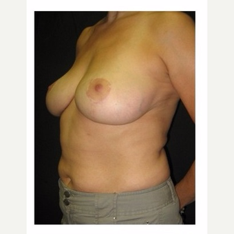 45-54 year old woman treated with Breast Lift after 3175685