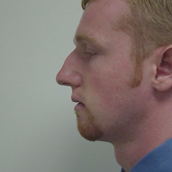 25-34 year old man treated with Rhinoplasty before 3506054