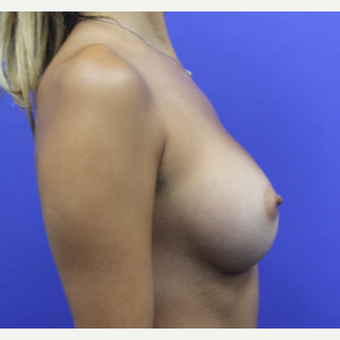 25-34 year old woman treated with Breast Augmentation after 3253182