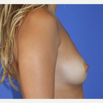25-34 year old woman treated with Breast Augmentation before 3253182