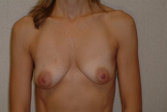 41 year old woman who complains of small uneven breasts. before 1332527