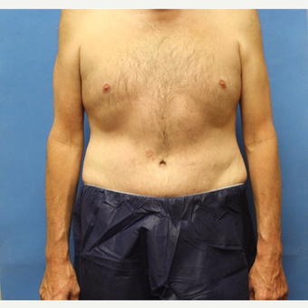 45-54 year old man treated with Tummy Tuck after 3531583